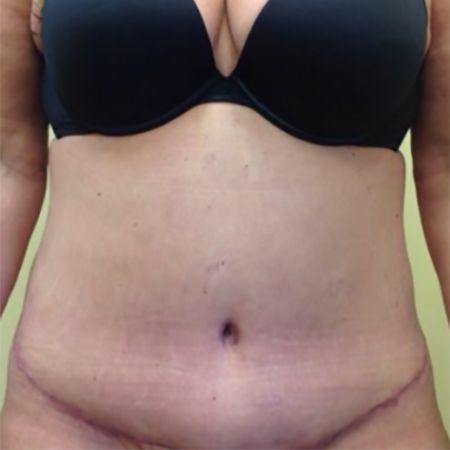 Tummy Tuck (Abdominoplasty) - Washington D C  | Mary Ella