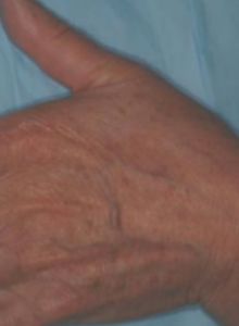 11vbeam_a._kauvar_m.d_12_weeks_post_treatments_with_perfecta_pigmented_lesion_handpiece