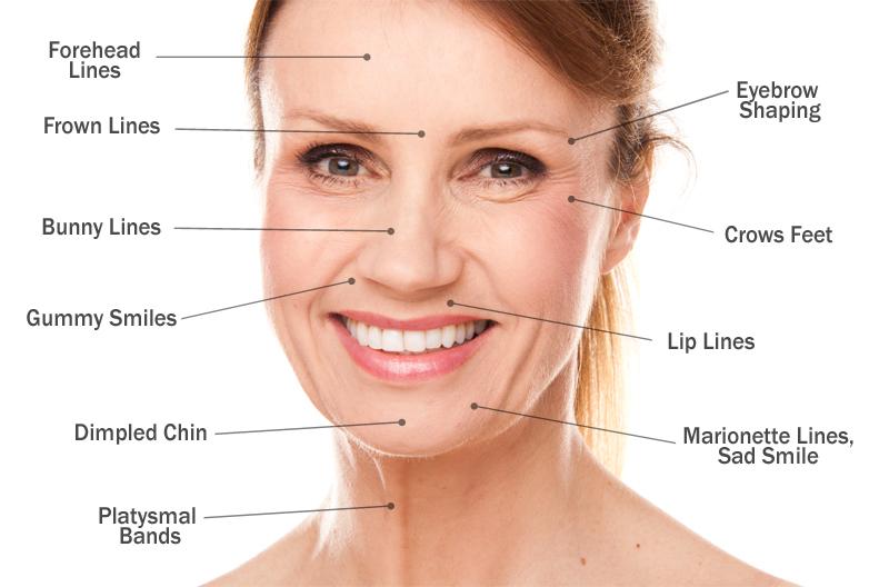Botox - Washington D C  | Mary Ella Carter, MD FACS